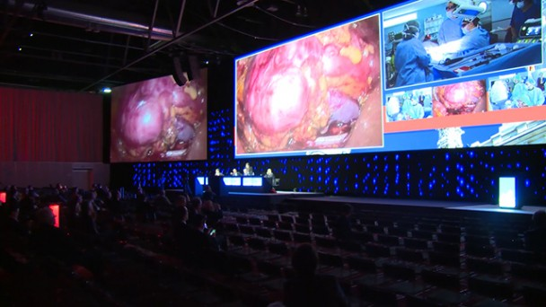 Learning from the Masters: Live Surgery at EAU 2015
